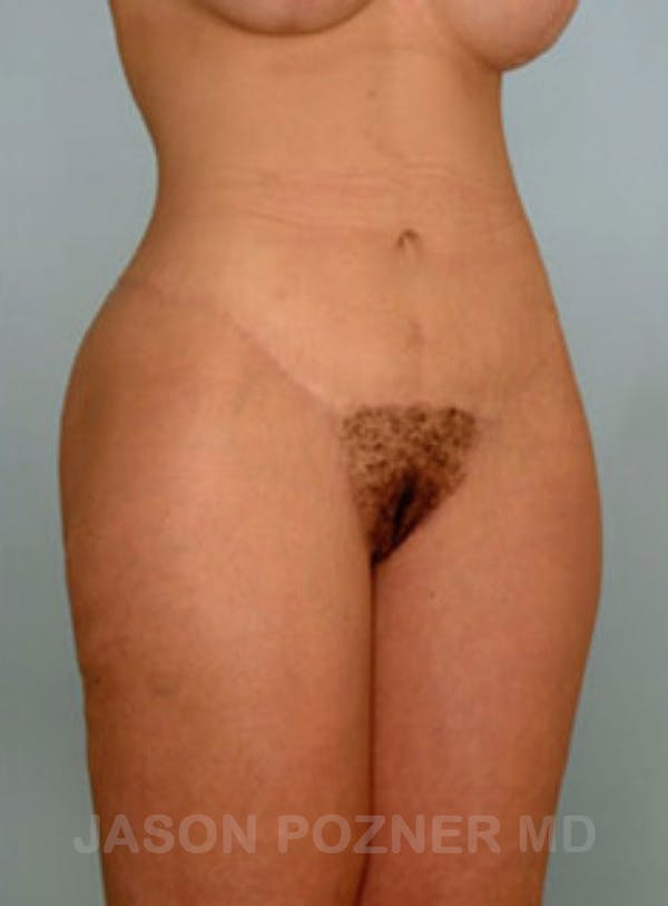 Body Lift Gallery - Patient 17932075 - Image 4