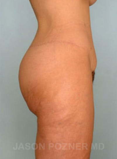 Body Lift Gallery - Patient 17932075 - Image 6