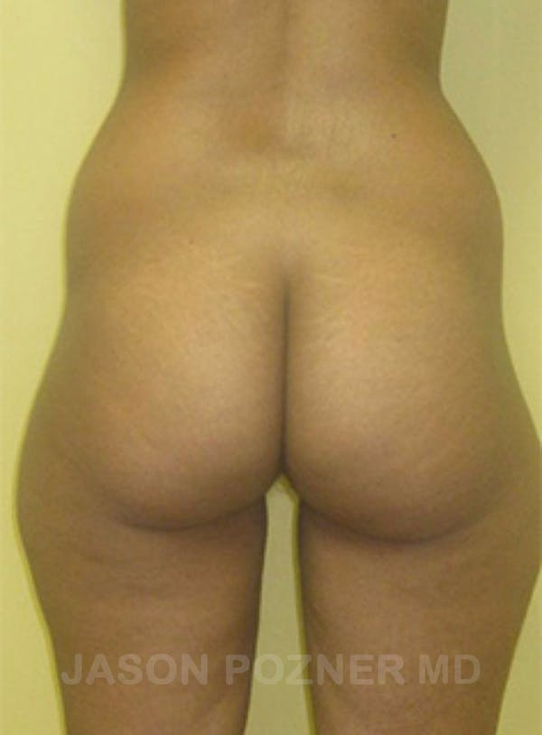 Butt Augmentation Gallery - Patient 17932087 - Image 1