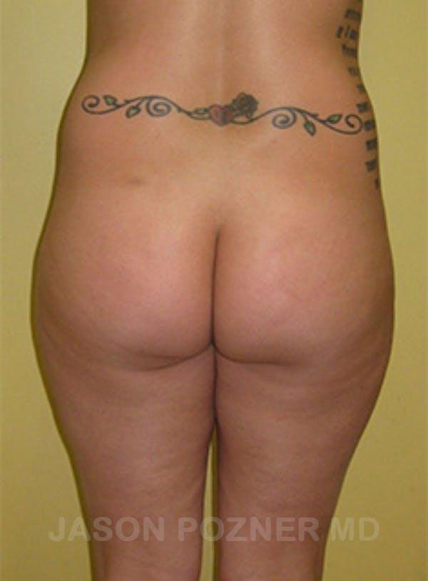 Butt Augmentation Gallery - Patient 17932093 - Image 1