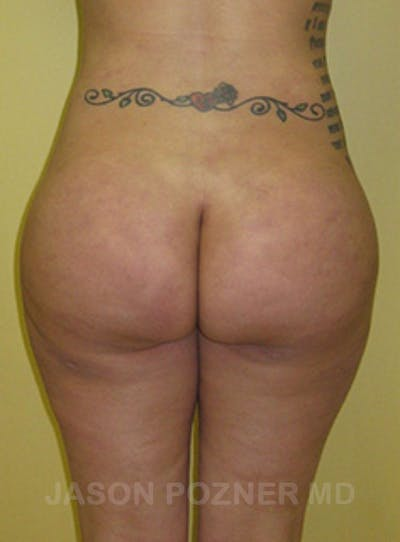 Butt Augmentation Gallery - Patient 17932093 - Image 2