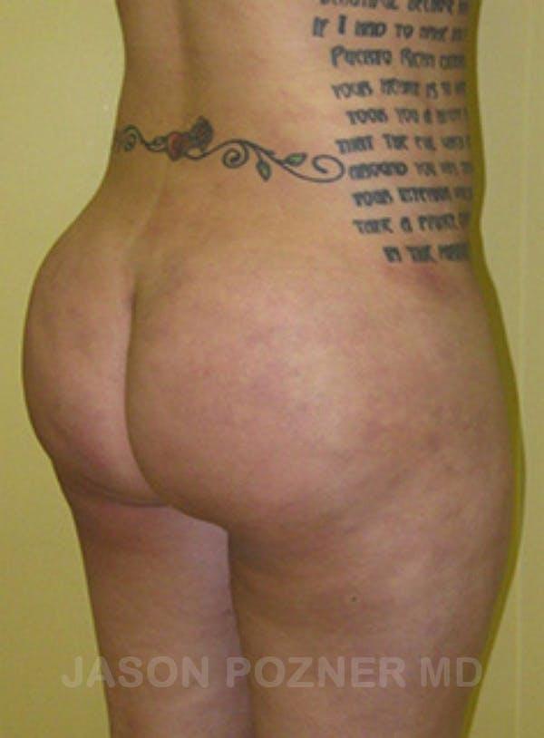 Butt Augmentation Gallery - Patient 17932093 - Image 4