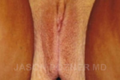 Labia Reduction Gallery - Patient 17932096 - Image 2