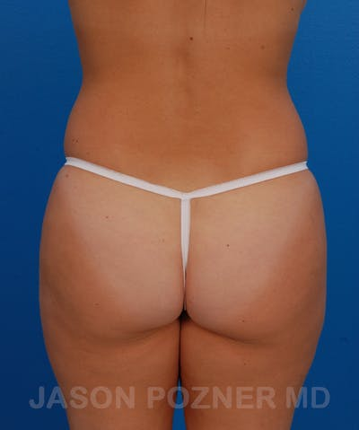 Liposuction Gallery - Patient 19056940 - Image 1