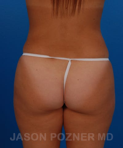Liposuction Gallery - Patient 19056940 - Image 2