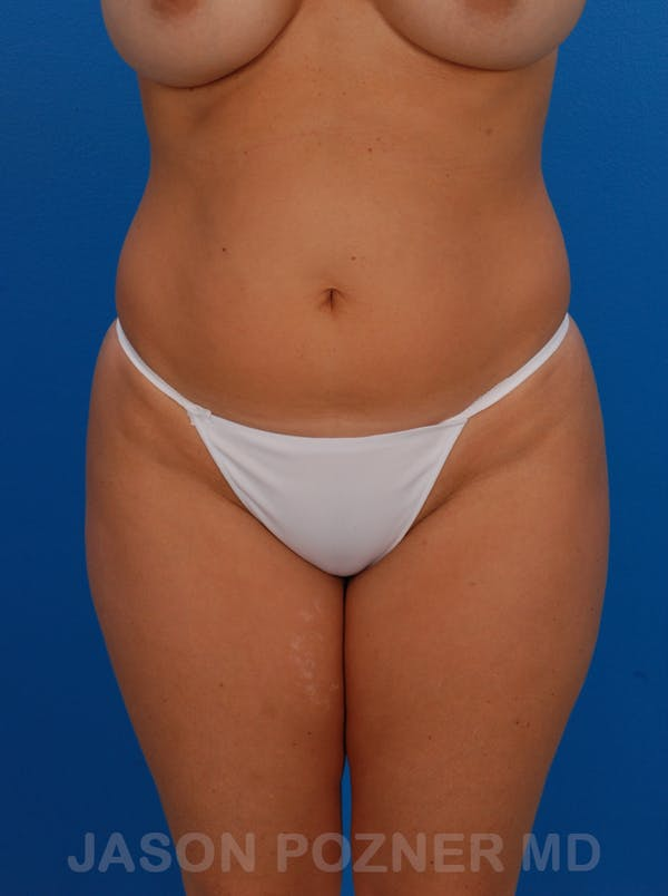 Liposuction Gallery - Patient 19056940 - Image 3