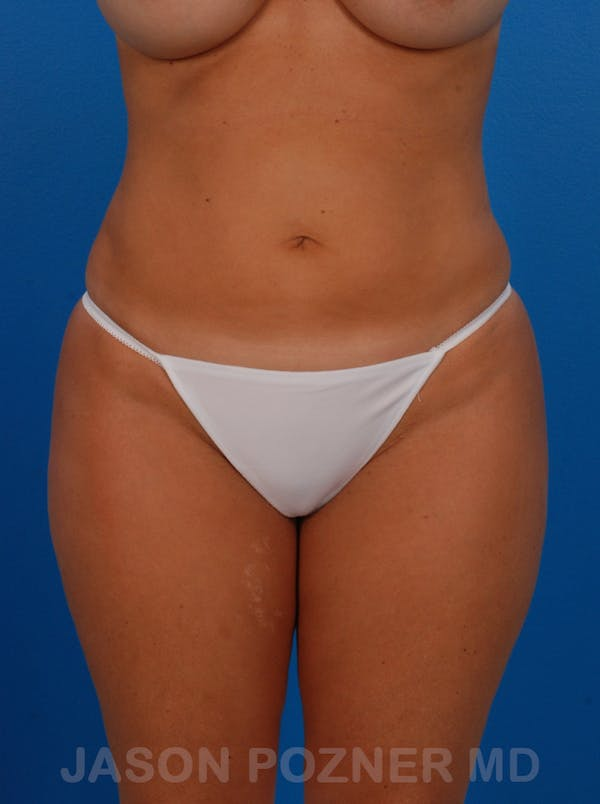 Liposuction Gallery - Patient 19056940 - Image 4