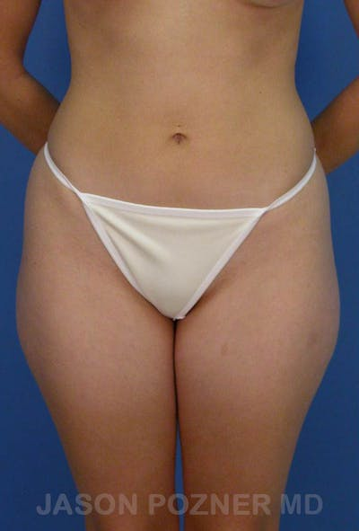 Liposuction Gallery - Patient 19056941 - Image 1