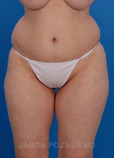 Liposuction Gallery - Patient 19056943 - Image 1