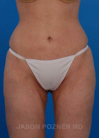 Liposuction Gallery - Patient 19056943 - Image 2