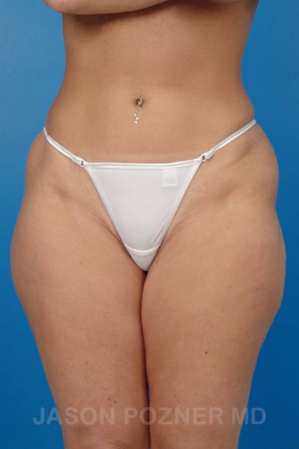 Liposuction Gallery - Patient 19056945 - Image 1
