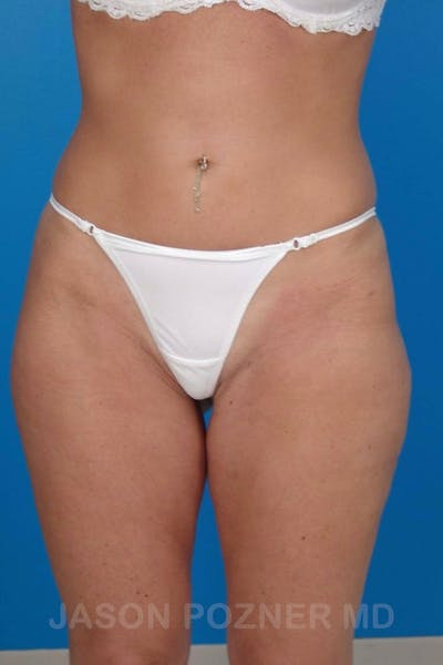 Liposuction Gallery - Patient 19056945 - Image 2