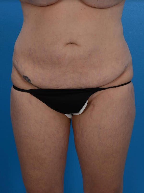 Tummy Tuck Gallery - Patient 24079558 - Image 1