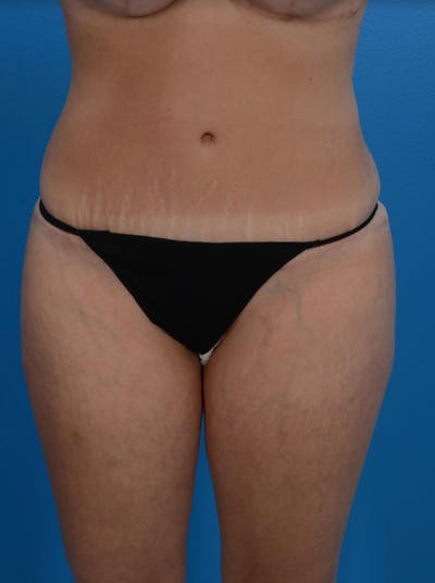 Tummy Tuck Gallery - Patient 24079558 - Image 2
