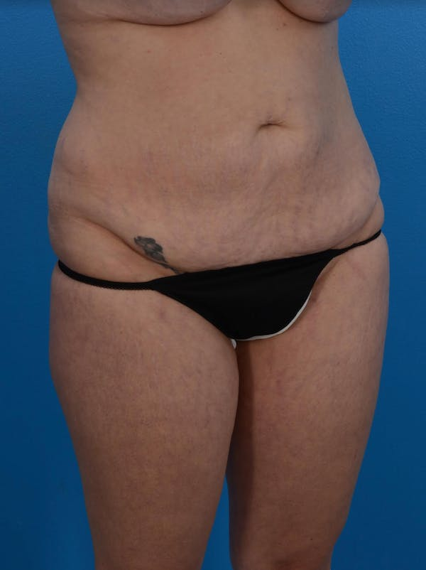 Tummy Tuck Gallery - Patient 24079558 - Image 3