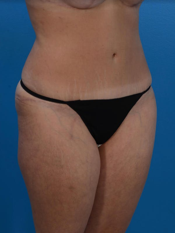 Tummy Tuck Gallery - Patient 24079558 - Image 4