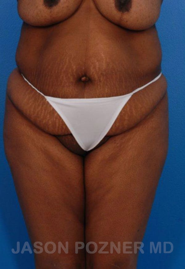 Liposuction Gallery - Patient 19057017 - Image 1