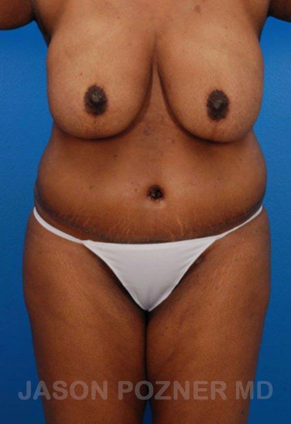 Liposuction Gallery - Patient 19057017 - Image 2