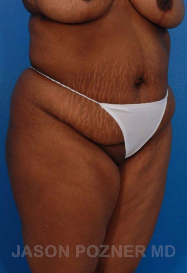 Liposuction Gallery - Patient 19057017 - Image 3
