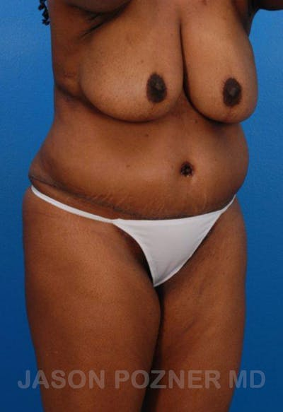 Liposuction Gallery - Patient 19057017 - Image 4