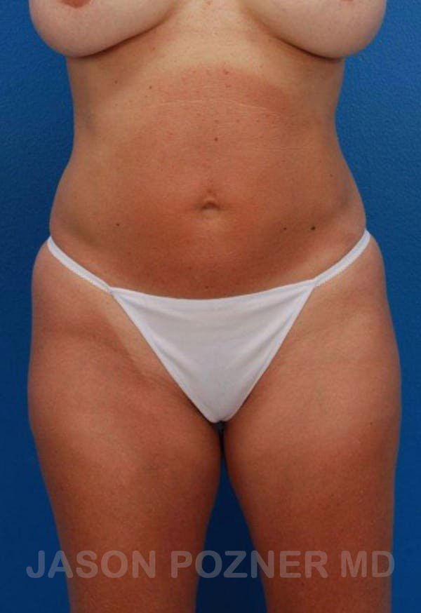 Liposuction Gallery - Patient 19057019 - Image 1