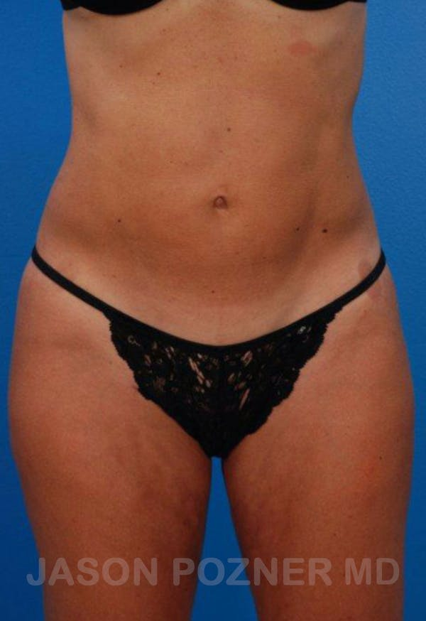Liposuction Gallery - Patient 19057019 - Image 2