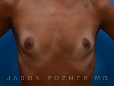 Breast Augmentation Gallery - Patient 19057061 - Image 1