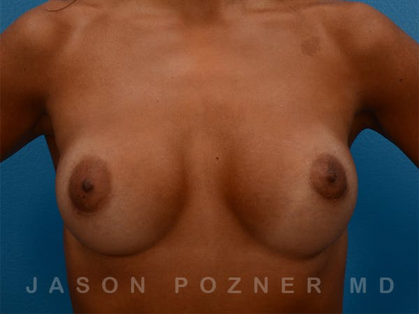 Breast Augmentation Gallery - Patient 19057061 - Image 2