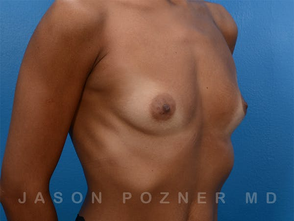 Breast Augmentation Gallery - Patient 19057061 - Image 3