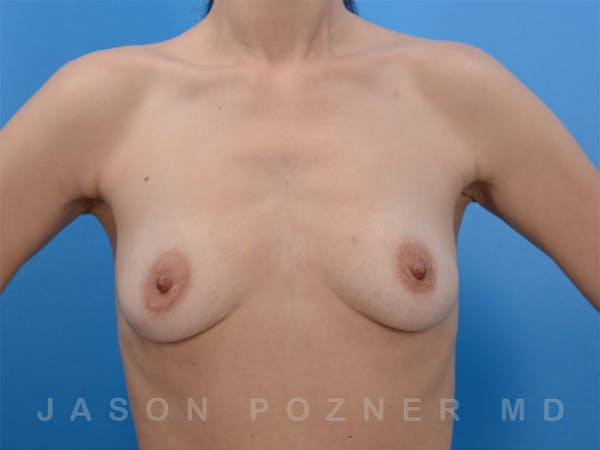 Breast Augmentation Gallery - Patient 19057063 - Image 1