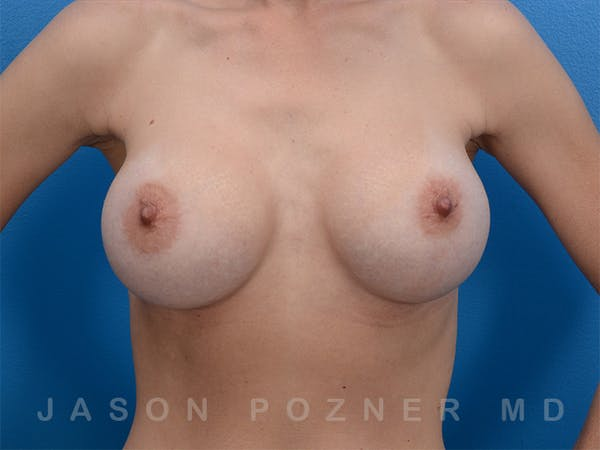 Breast Augmentation Gallery - Patient 19057063 - Image 2