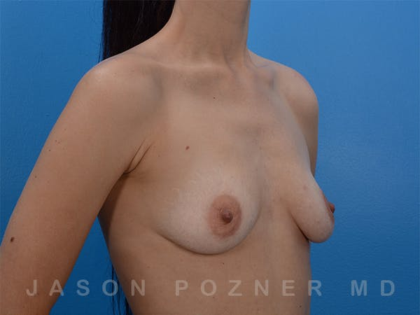 Breast Augmentation Gallery - Patient 19057063 - Image 3