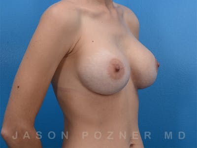 Breast Augmentation Gallery - Patient 19057063 - Image 4