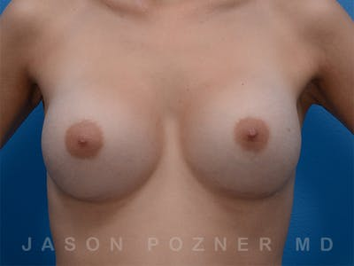 Breast Augmentation Gallery - Patient 19057066 - Image 2