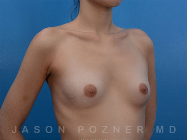 Breast Augmentation Gallery - Patient 19057066 - Image 3