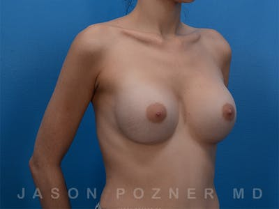 Breast Augmentation Gallery - Patient 19057066 - Image 4