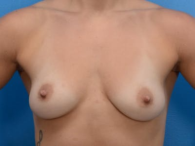 Breast Augmentation Gallery - Patient 19057069 - Image 1