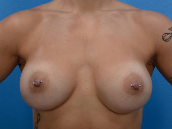 Breast Augmentation Gallery - Patient 19057069 - Image 2