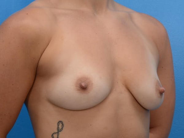 Breast Augmentation Gallery - Patient 19057069 - Image 3