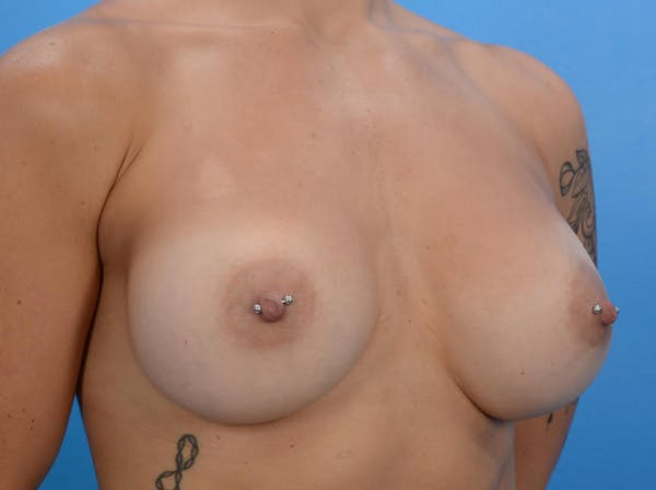 Breast Augmentation Gallery - Patient 19057069 - Image 4