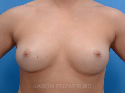 Breast Augmentation Gallery - Patient 19057073 - Image 1