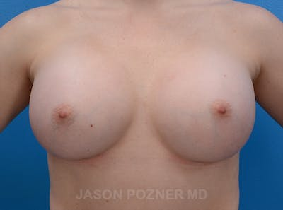 Breast Augmentation Gallery - Patient 19057073 - Image 2
