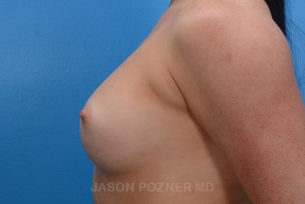 Breast Augmentation Gallery - Patient 19057073 - Image 5
