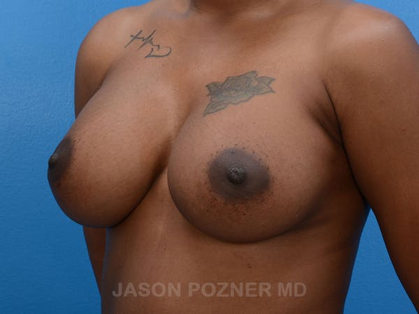 Breast Augmentation Gallery - Patient 19057077 - Image 6