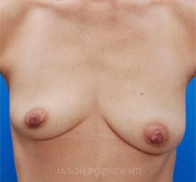 Breast Augmentation Gallery - Patient 19057083 - Image 1