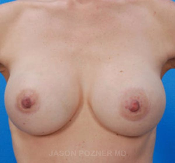 Breast Augmentation Gallery - Patient 19057083 - Image 2