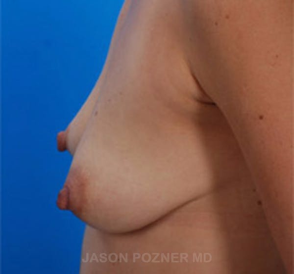 Breast Augmentation Gallery - Patient 19057083 - Image 3
