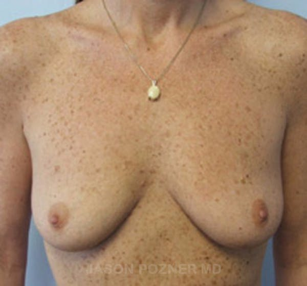 Breast Augmentation Gallery - Patient 19057088 - Image 1