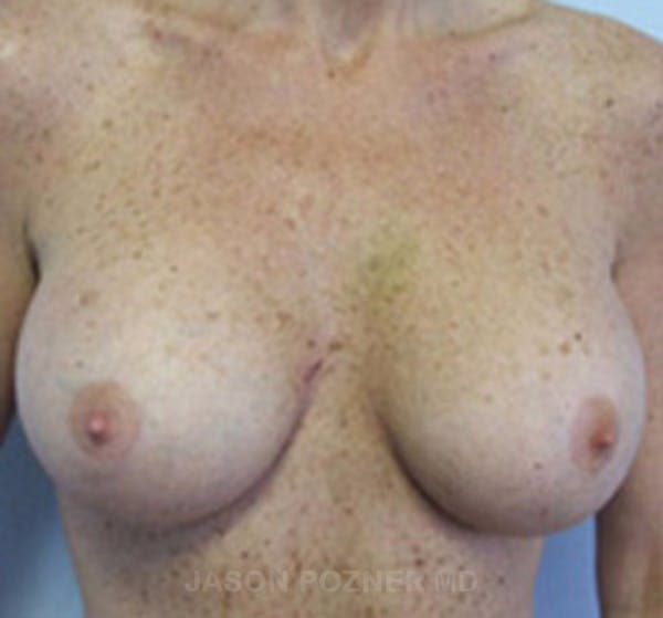 Breast Augmentation Gallery - Patient 19057088 - Image 2