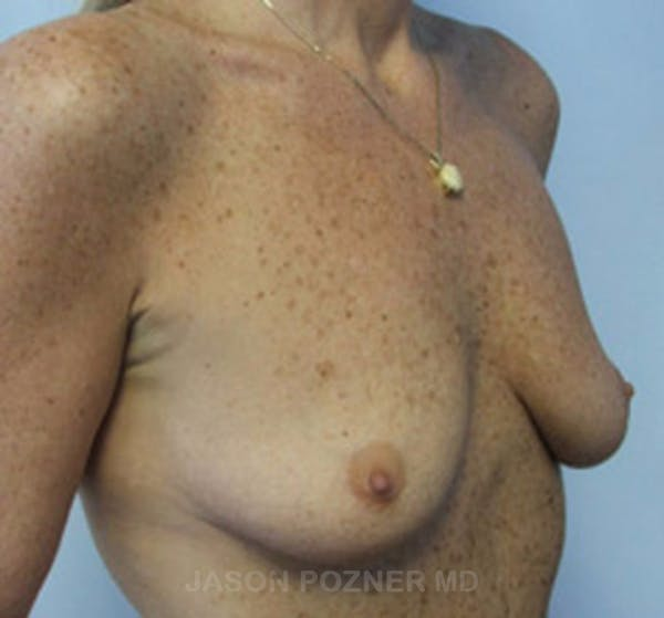 Breast Augmentation Gallery - Patient 19057088 - Image 3